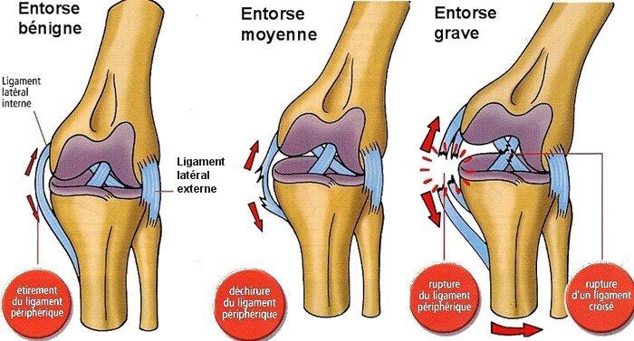 Entorse genou et ostéopathie à Breuillet 91