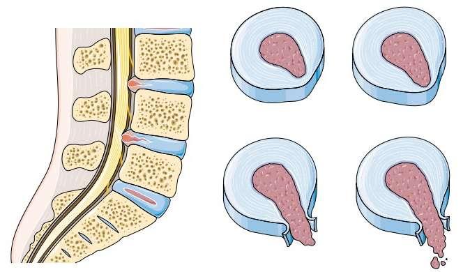 Hernie discale et ostéopathie à Breuillet 91