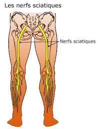 Sciatique et ostéopathie à Breuillet 91